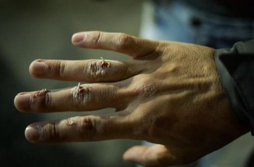 Pedra arremessada no fotográfo Jardiel Carvalho desviou na máscara e feriu a mão do profissional