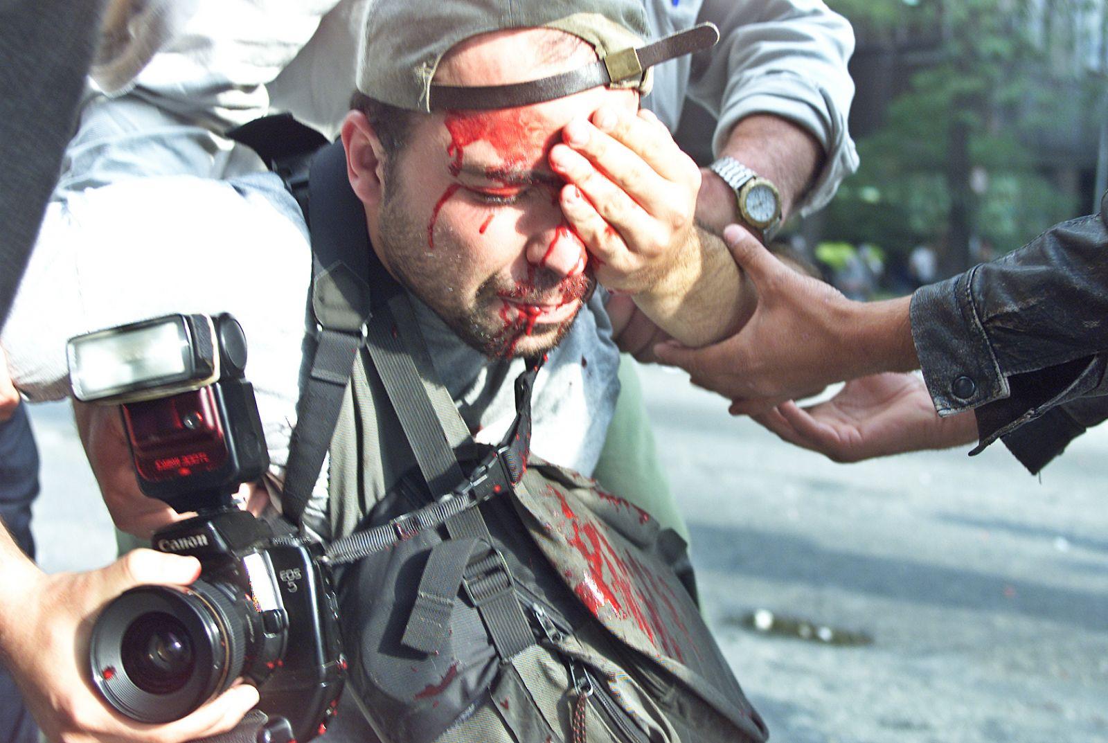 Em 2000, Alex Silveira foi socorrido pelos manifestantes após ter sido atingido por bala de borracha no olho esquerdo / Foto: Caio Guatelli